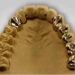 OK-Front mit abnehmbarer Brücke auf 2 Implantaten