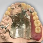 Partielle OK-Prothese als Ersatz von 8 Zähnen